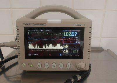 Anesteziologický monitoring