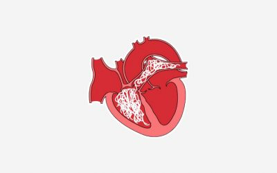 Srdeční dirofilarióza – srdeční červivost