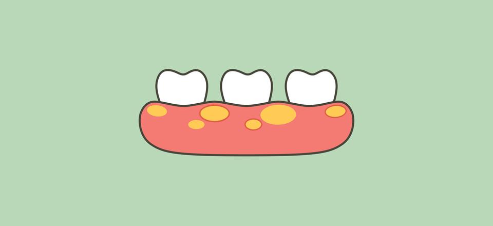 Rozsáhlý periapikální absces na premoláru horní čelisti